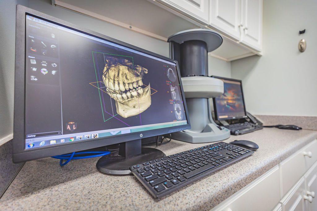 topsail dental 3d printer